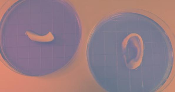 3D-биопринтер позволяет создать уши, мышцы и костную ткань